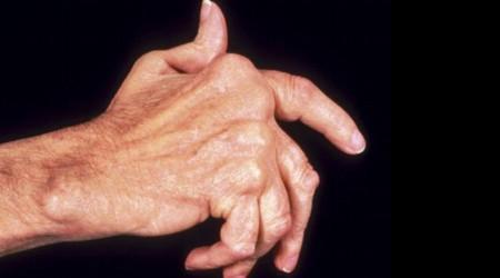 artrite mão artrítica