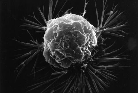 Imagem de uma célula de um câncer de mama feita em um microscópio de elétrons. Abaixo das células estão os vasos sanguíneos que ele forma para crescer.