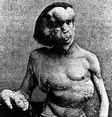 difalia dois pênis