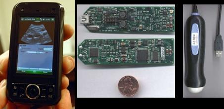 ultrassom-ecografia-celular-2