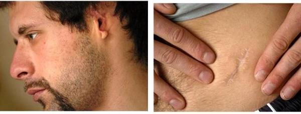 Plasticidade de um peito um mês depois