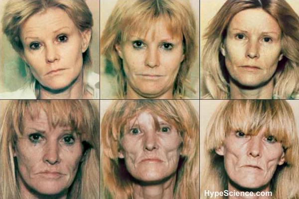 usuária de drogas pesadas durante os anos
