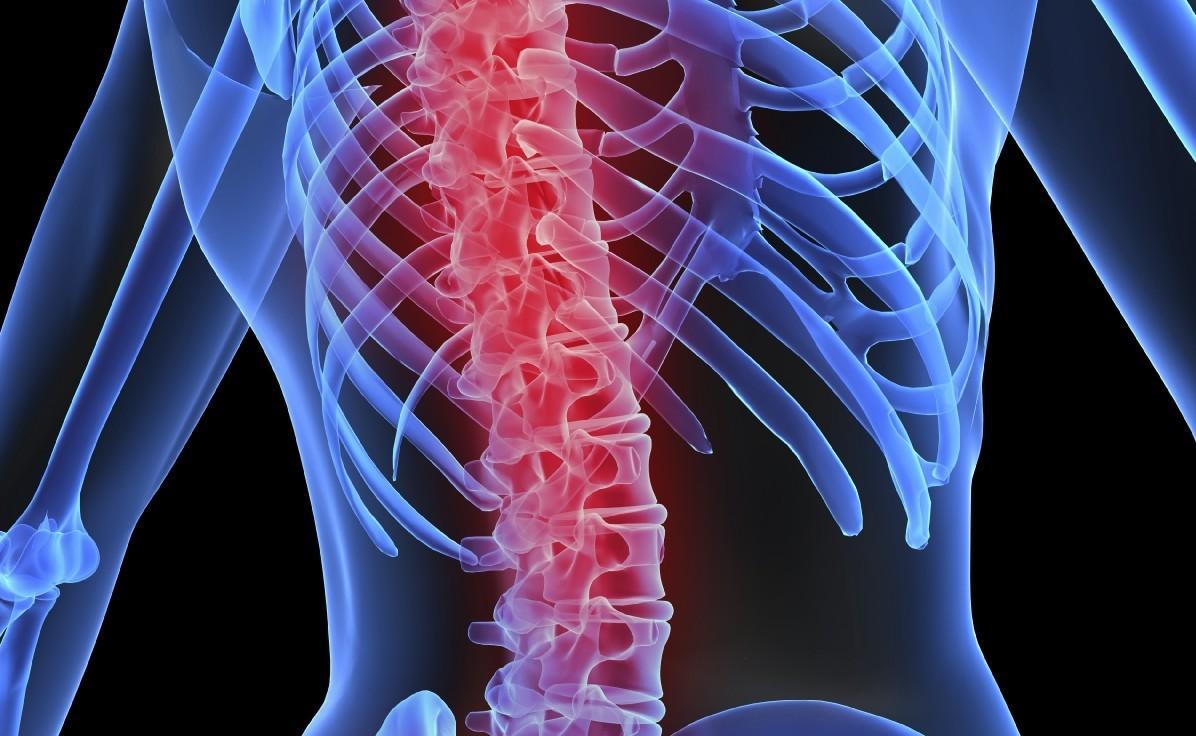 Degeneração progressiva causada pela artrose pode atingir a coluna