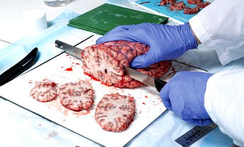 cerebro-481