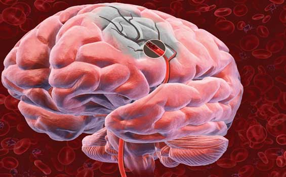 o que é derrame cerebral