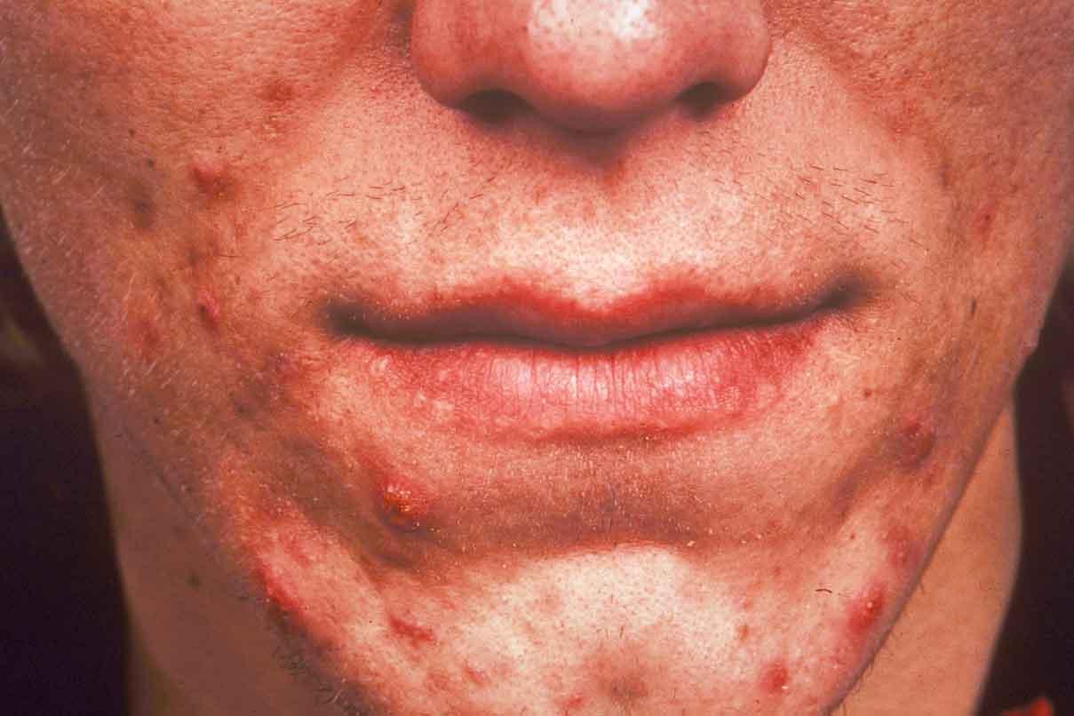 sa de acne ter ou n o ter