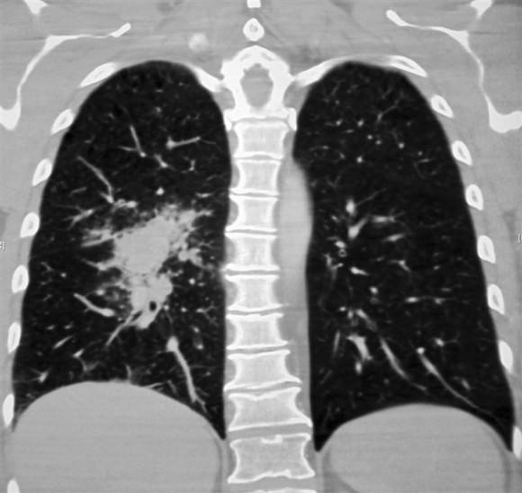 tipos de câncer pulmão