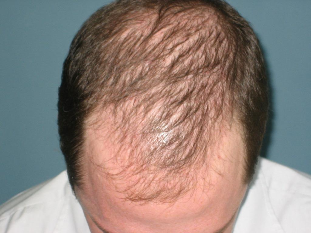 Human hair growth - Wikipedia