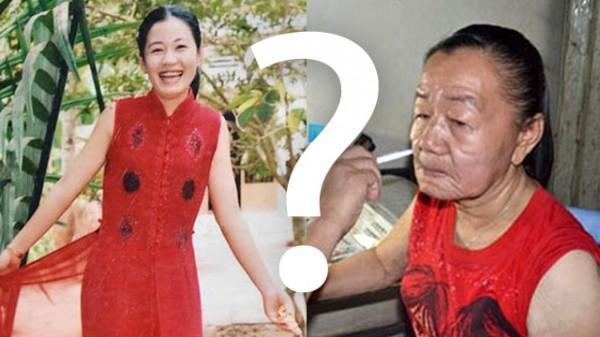 aged woman e1318601471792 Misteriosa doença deixa mulher faz mulher envelhecer 50 anos em apenas 3 anos