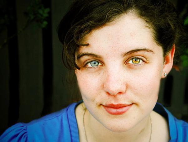 Heterocromia  a beleza dos olhos multicoloridos 56ce9203ba