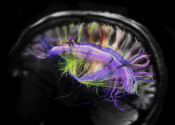 human-brain-120329