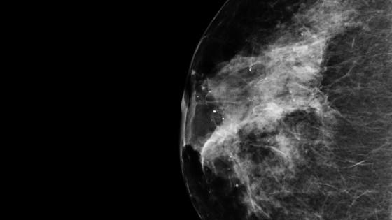 Breast-cancer-from-NASA-Goddard-560x315