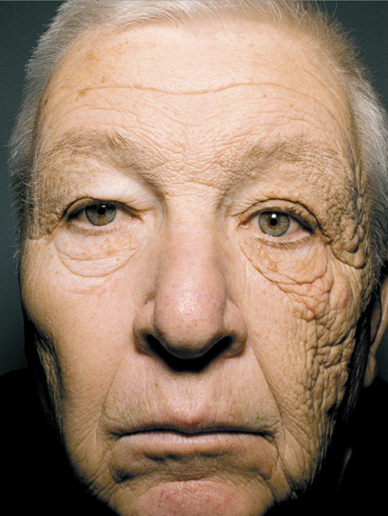 envelhecimento pelo sol