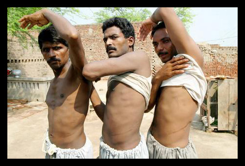 9-Gurgaon-Illegal-Kidney-Transplant-Racket–India-2008