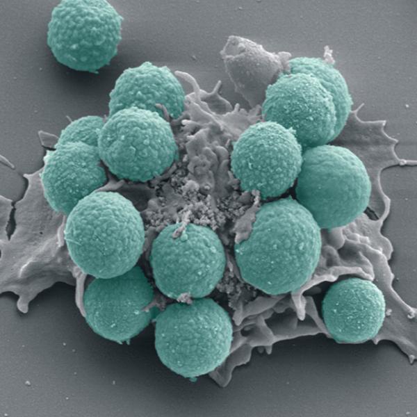 Leucócito glóbulos brancos
