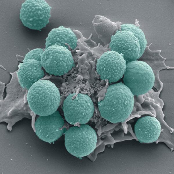 leucocito devorando fungos