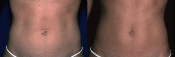 Before (left) and after umbilicoplasty surgery.