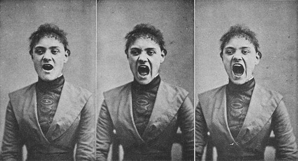 Resultado de imagem para freud histeria