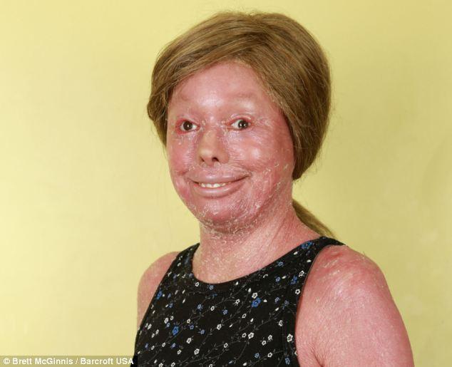 Jovem tem condição dermatológica rara que a impede de fechar os olhos ou crescer cabelo