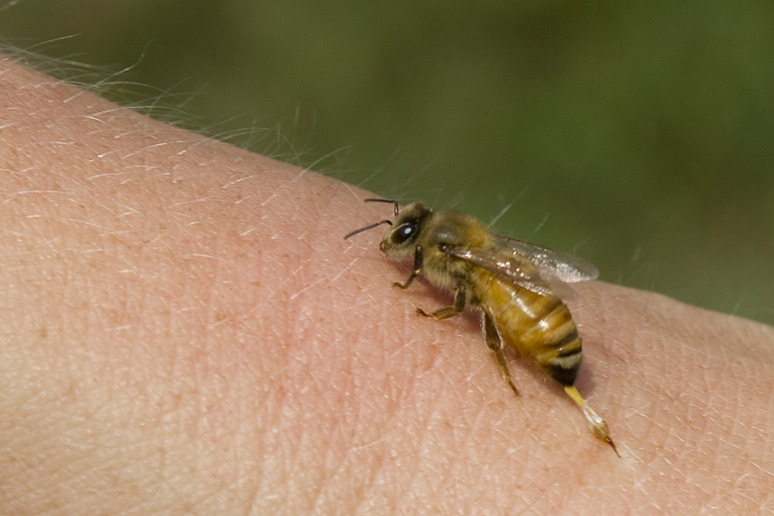 Bee And Wasp Stings : What To Do - Medical News Today
