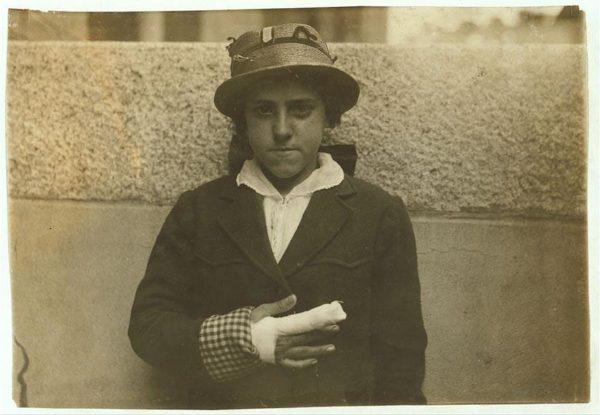 Aos 15 anos, Estelle Poiriere foi fotografada com uma grave lesão no dedo, que ficou preso em uma máquina