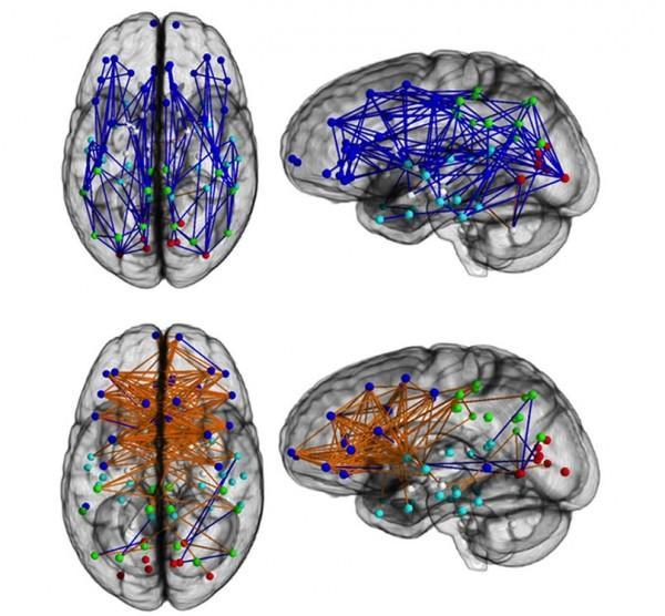 As imagens acima são de cérebros masculinos, e as abaixo femininos