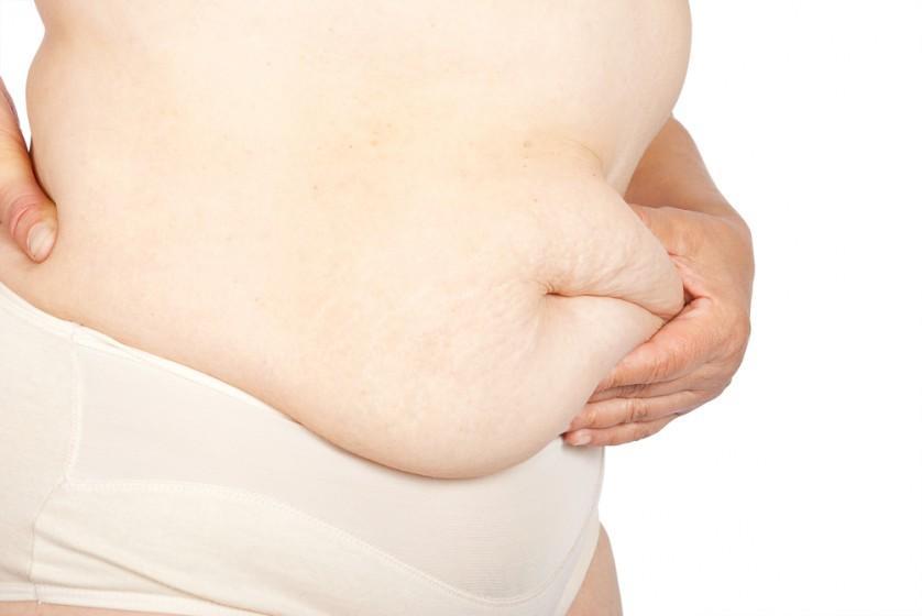 cirurgia bariátrica perda de peso