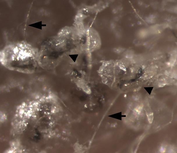 Fios de cabelo (setas) formados por células-tronco pluripotentes induzidas ,derivadas de células-tronco epiteliais