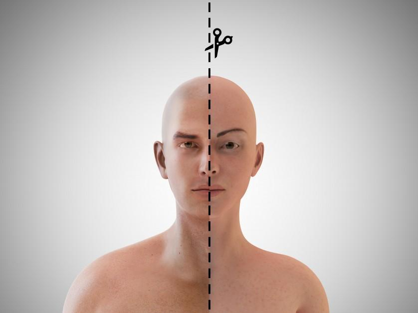 cirurgias cosmeticas radicais 6