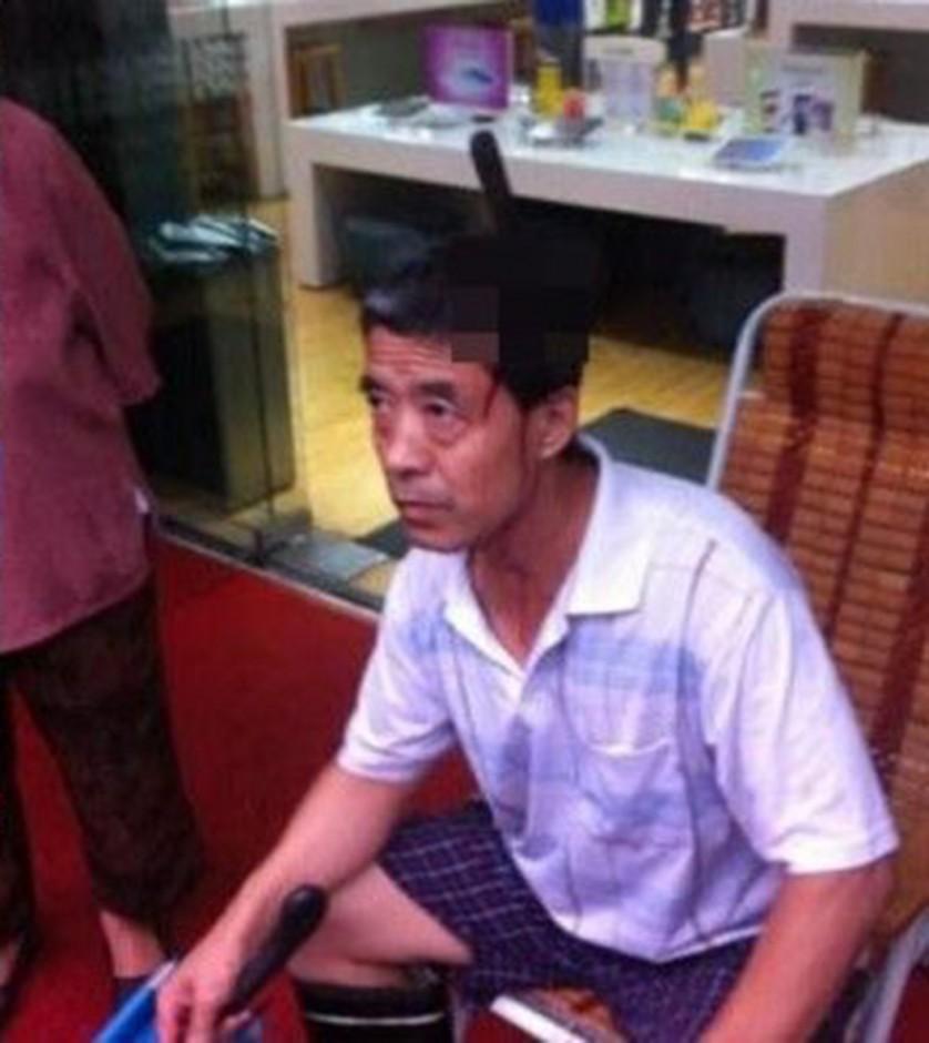 Man Calmly Walks Into Hospital With Knife In Head