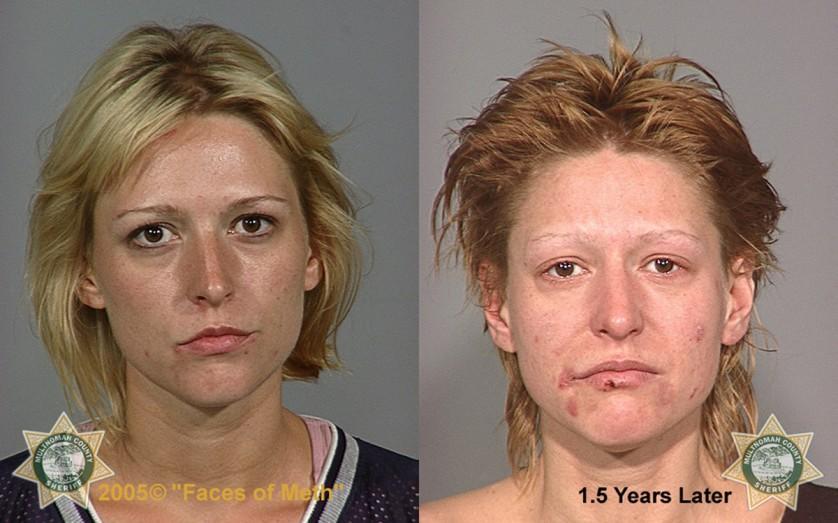 Fotos de antes e depois 4--