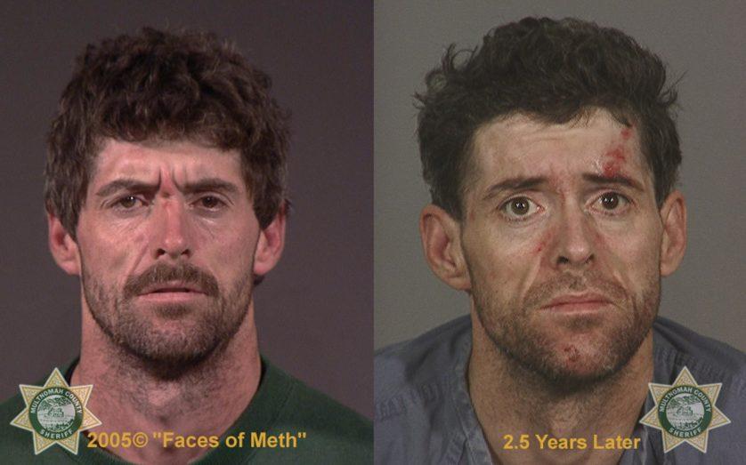 Fotos de antes e depois 4---