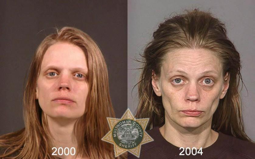 Fotos de antes e depois 4----
