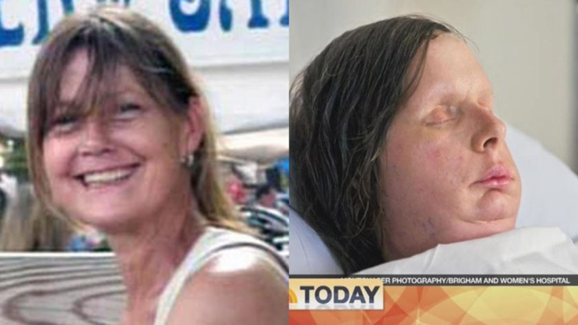 Fotos de antes e depois 6