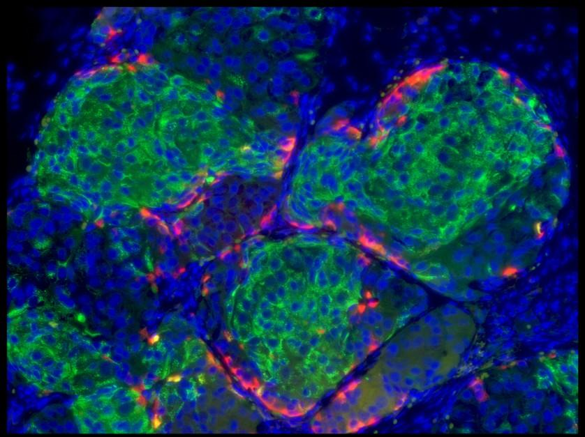 human-sc-beta-cells