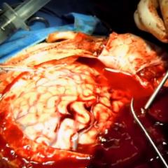 Vídeo: neurocirurgião faz cirurgia para salvar mulher de hematoma subdural