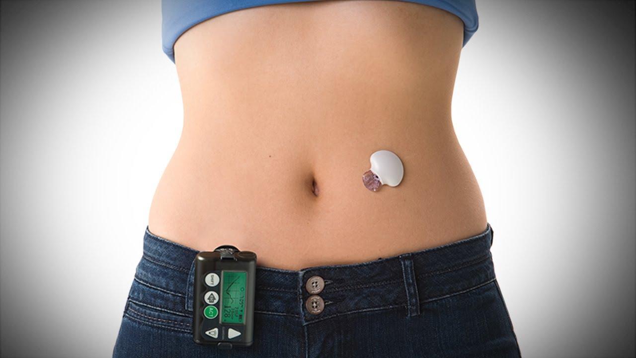 Atenção diabéticos: Pâncreas artificial já existe e está funcionando muito bem