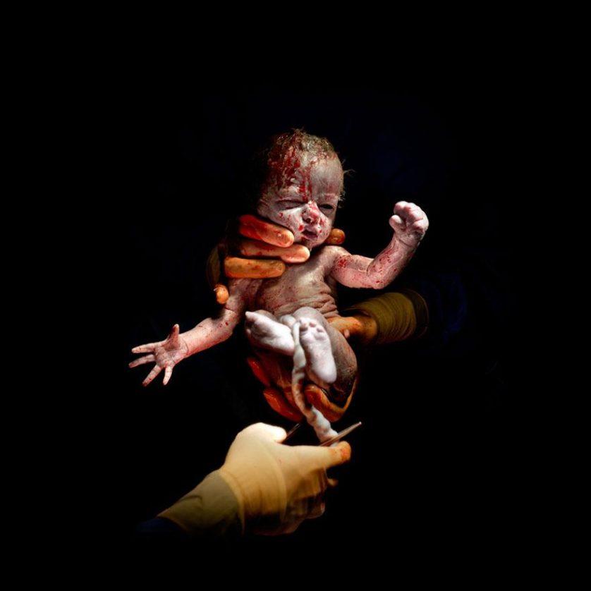 fotos recem nascidos cesaria 1