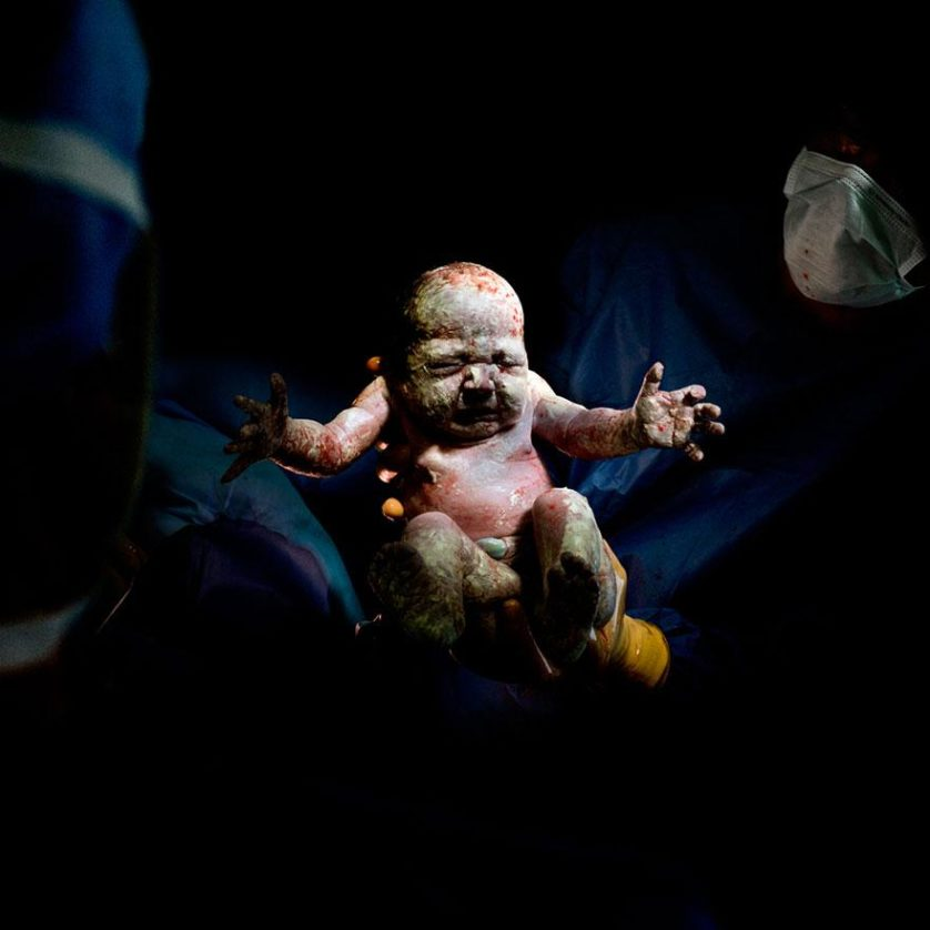 fotos recem nascidos cesaria 10