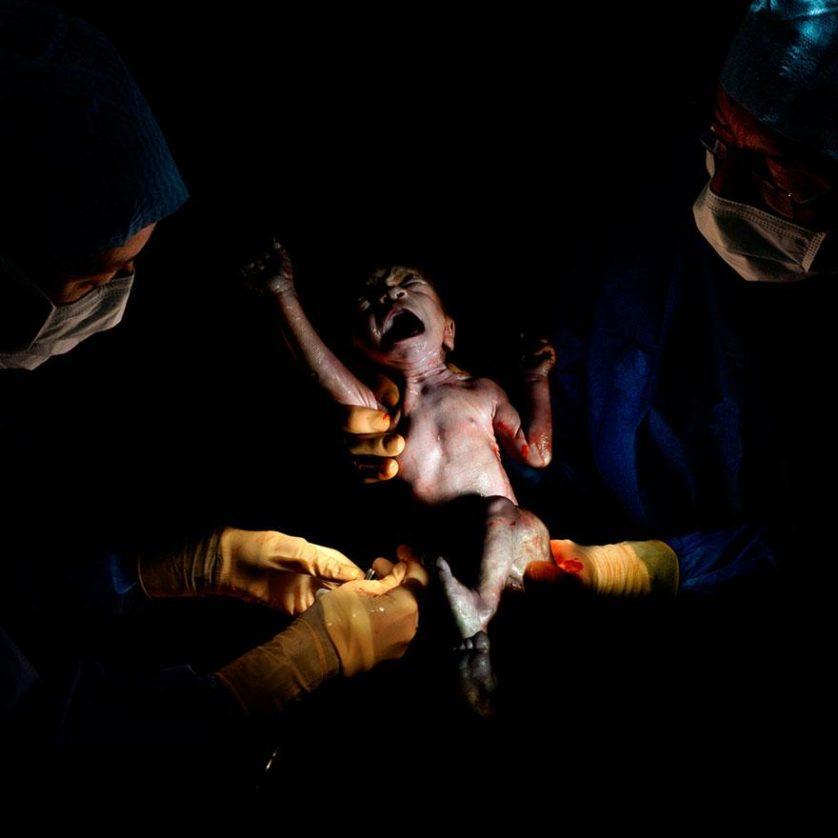 fotos recem nascidos cesaria 3