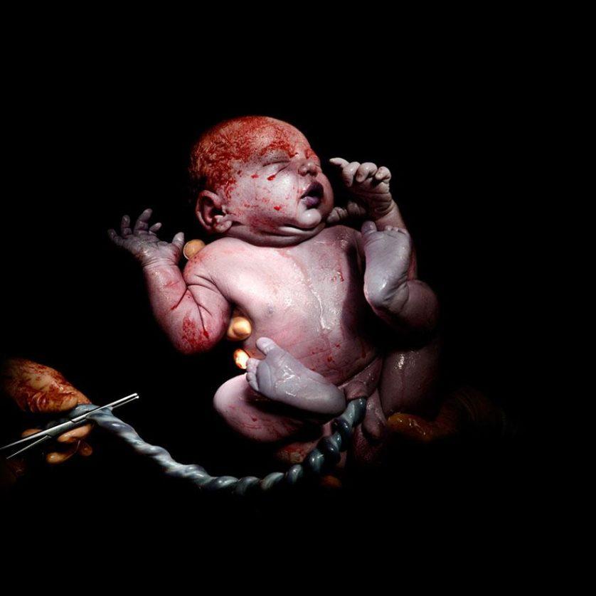 fotos recem nascidos cesaria 4