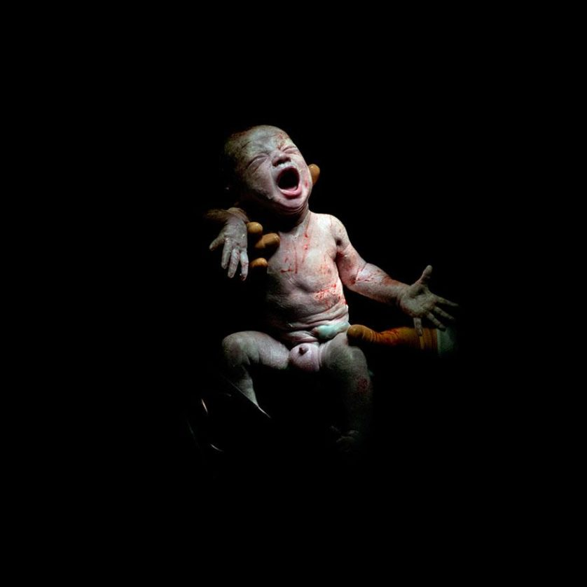 fotos recem nascidos cesaria 5