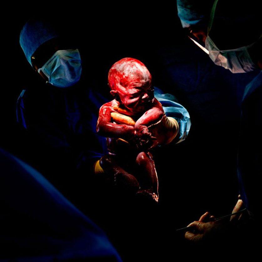 fotos recem nascidos cesaria 8