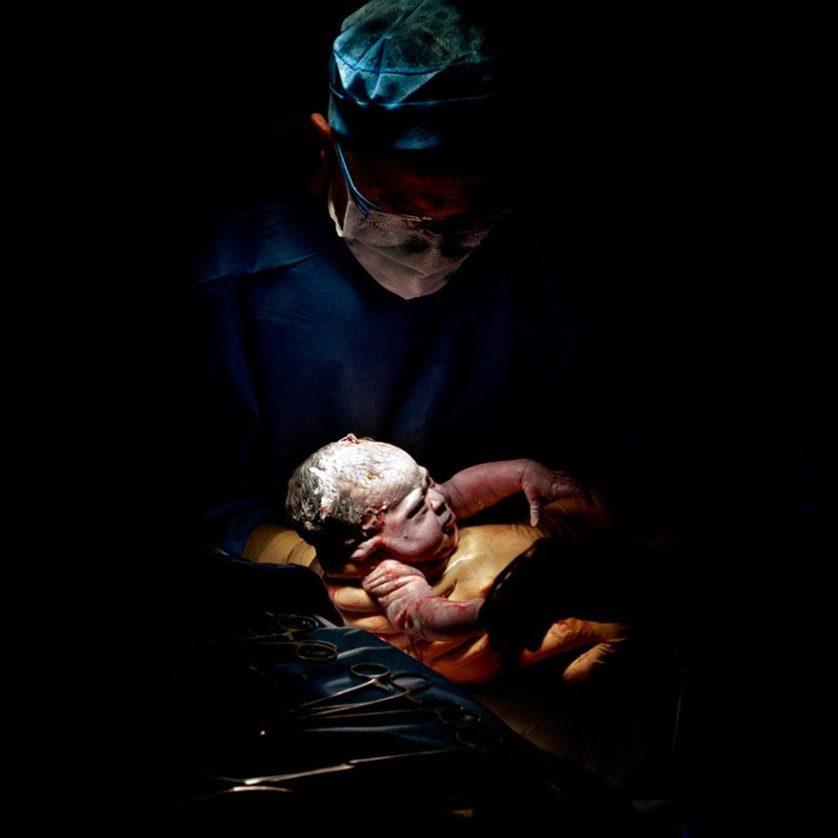 fotos recem nascidos cesaria 9