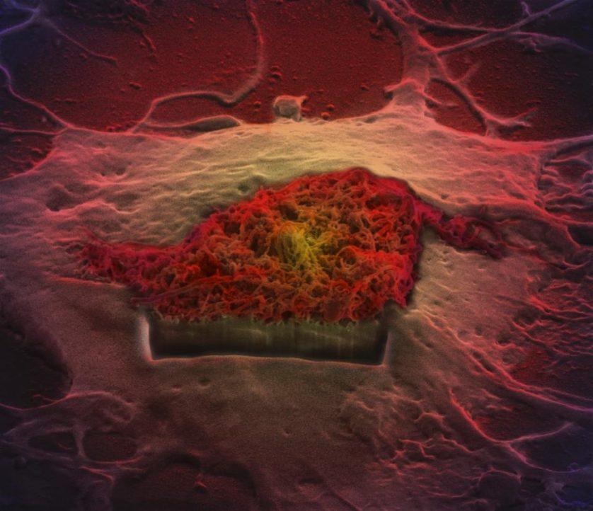 Célula de astrócitos do cérebro absorvendo nano-agulhas de carbono, por Khuloud Al-Jamal, Serene Tay e Michael Cicirko, da King's College London (Inglaterra)