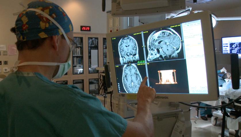 cirurgia cerebral 2
