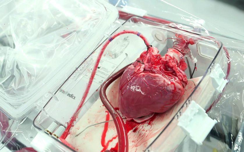 Transplante de coração pode se tornar muito mais comum