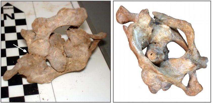 Os pesquisadores também descobriram que o arco posterior do osso atlas (a vértebra superior entre o crânio e a coluna vertebral) tinha sido quebrado