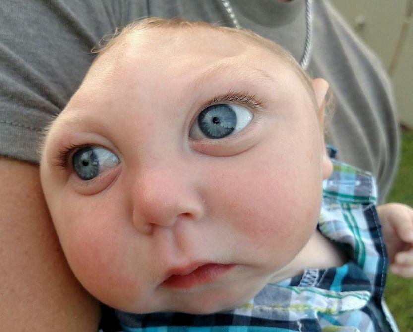 Bebê nasce sem crânio e desafia as probabilidades