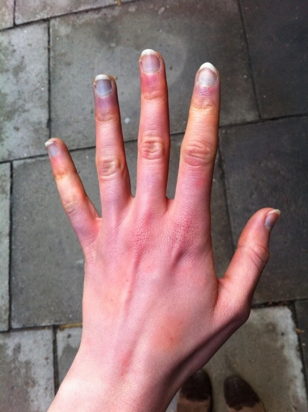 Right Ring Finger Pain When It Is Wet